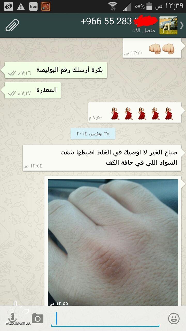 رد: ▆ خلطة الدكتور محمد للتبييض أسرع خلطة (صاروخيه وآمنة) لعام 2015 ▇ hayahcc_1420926863_796.jpeg