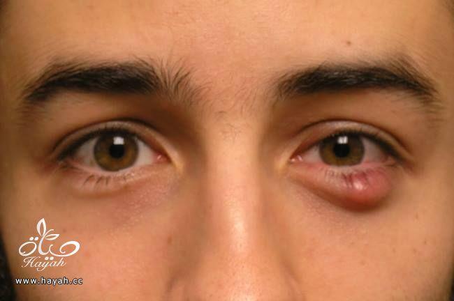 ماهو مرض الشحاذ hayahcc_1435226329_817.jpg