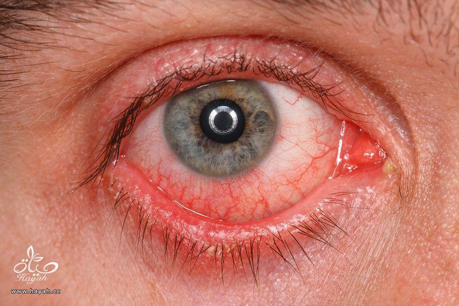 لماذا يصبح لون العين أحمر بعد حمام السباحة hayahcc_1437552414_945.jpg