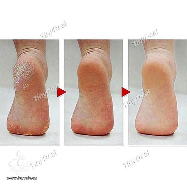 لن تحذفي بشرة القدم hayahcc_1439284479_804.jpg