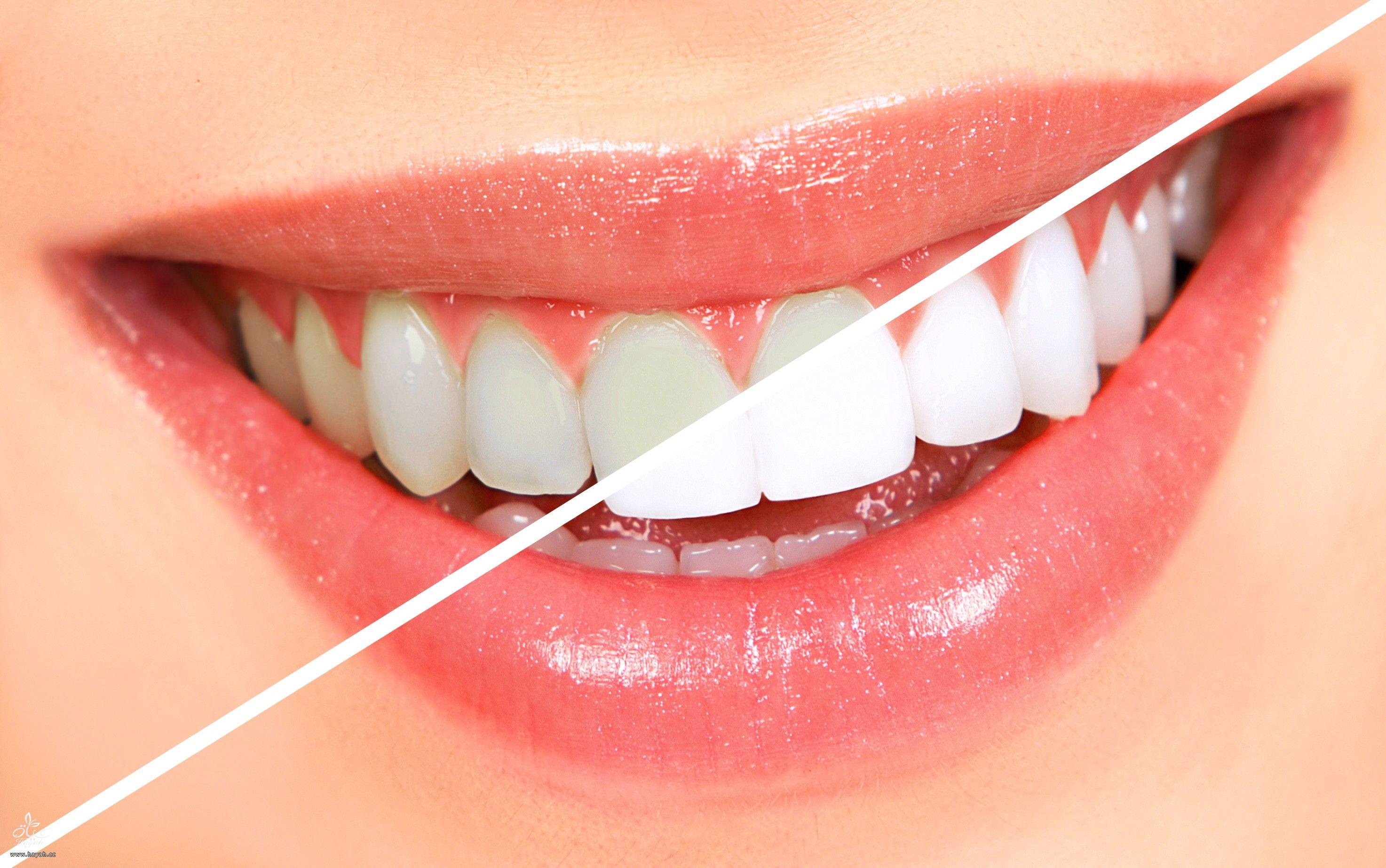 وداعا لليزر في تبيض الأسنان ! hayahcc_1440740210_307.jpg