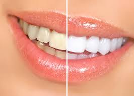 افضل وصفة لتبيض الاسنان من اول مره hayahcc_1442890591_679.jpg