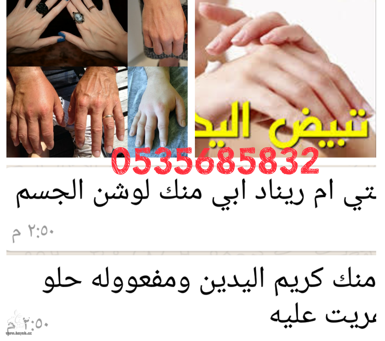 اراء كريم نفخ الكفين واخفاء العروق وتسمين وتبييض اليدين hayahcc_1479751248_474.png