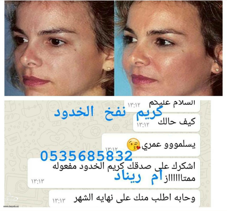 تجربه بودره نفخ الخدين ،توريد الخدود وتسمين الوجه hayahcc_1479751700_728.png
